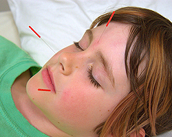Dr. Fred Ragsdale - Acupuncture for children