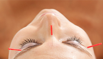 Acupuncture can relieve stress and anxiety