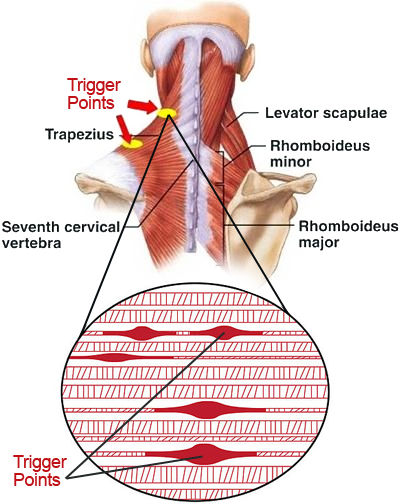 Trigger Point Therapy - West Hollywood Acupuncturist - Dr. Fred Ragsdale